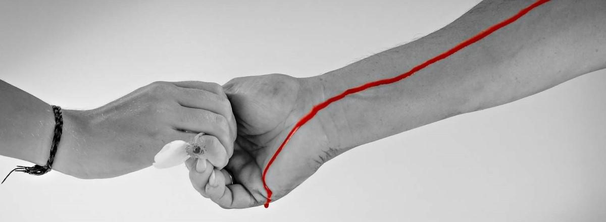 Vascular Access Dislodgement